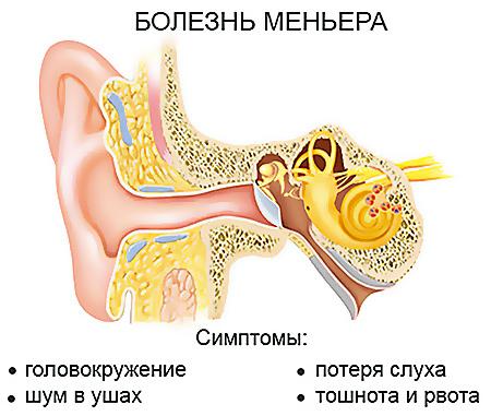 Симптомы при болезни Меньера