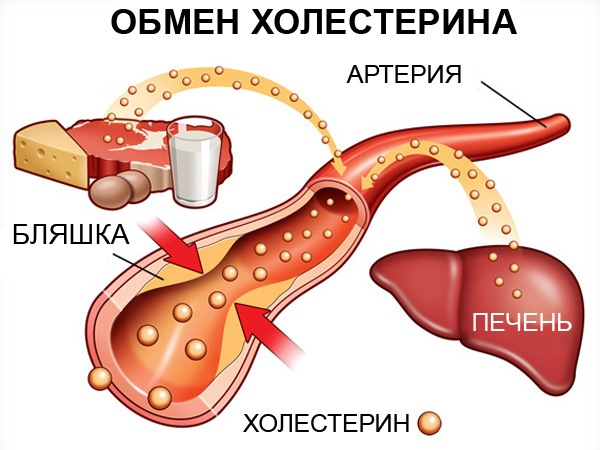 Высокий процент холестерина