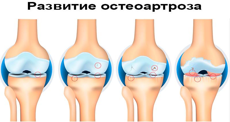 Развитие остеоартроза на коленях