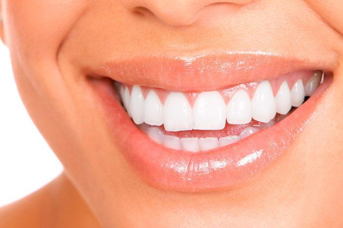 Осветление зубов
