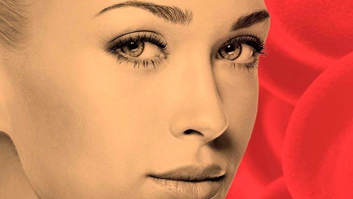 Железодефицитная анемия: симптомы и лечение у женщин