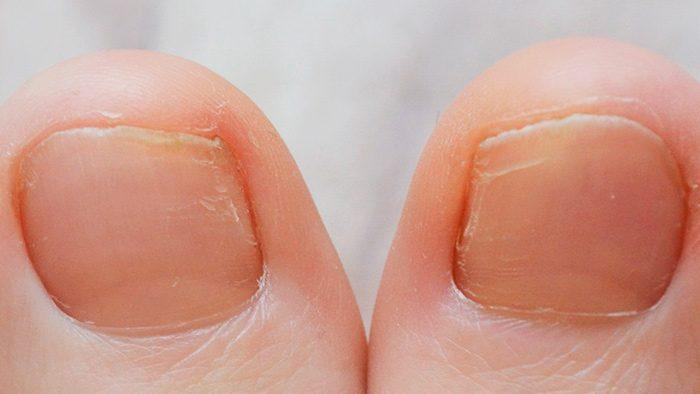 Грибок ногтей: причины появления на ногах, как диагностировать и чем лечить?