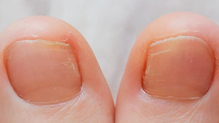 Болезни ногтей ног фото и описание
