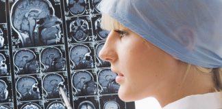 Женская эпилепсия
