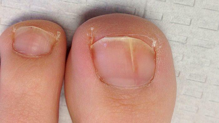 Начальная стадия грибка на пальцах ноги