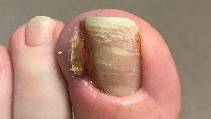 Конечная стадия грибка на ногтях
