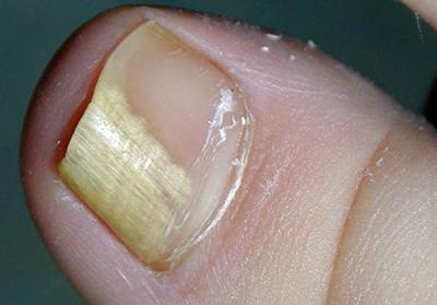 Грибок на ногтях пальцев ног