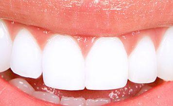 Лучший способ отбеливание зубов