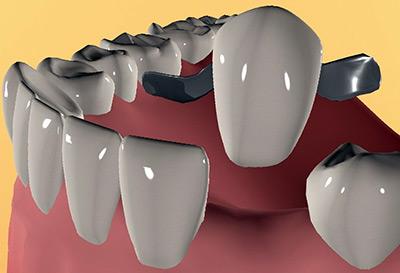 Технологии имплантации зубов
