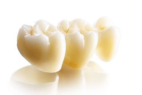 Зубные коронки и вкладки. Что и как используется