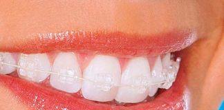 Брекеты на зубах