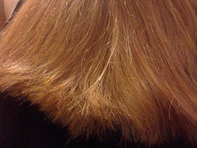Сухие волосы у женщины