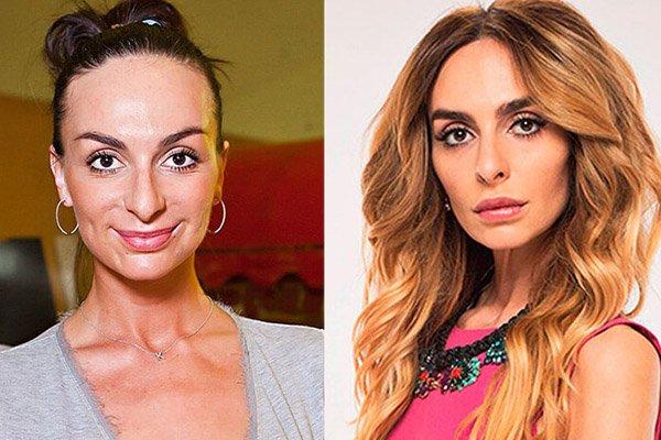 Фото Екатерины Варнава до и после пластики