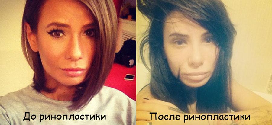 Фото Айзы Анохиной (Долматова) до и после пластики