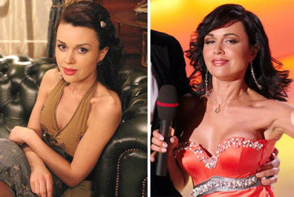 Фото Анастасии Заворотнюк до и после пластики