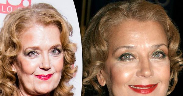 Фото Ирины Алферовой до и после пластики