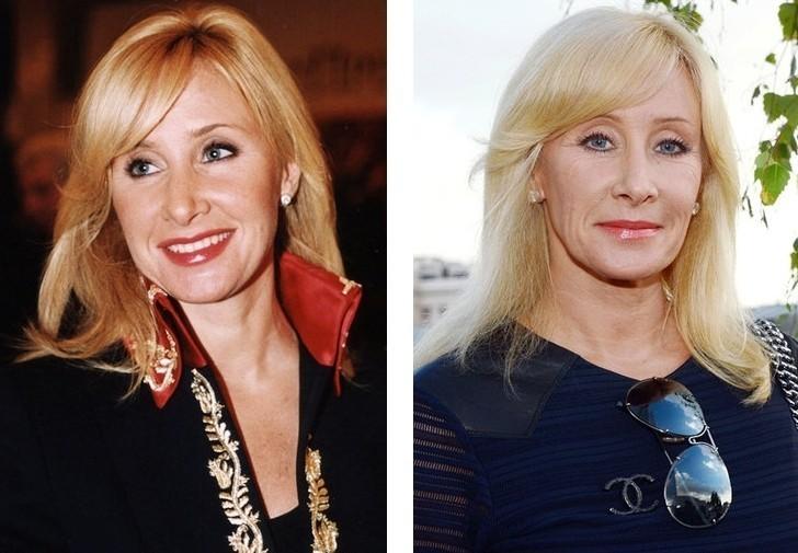 Фото Оксаны Пушкиной до и после пластики фото