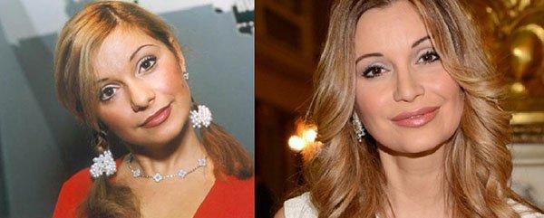 Фото Ольги Орловой до и после пластики