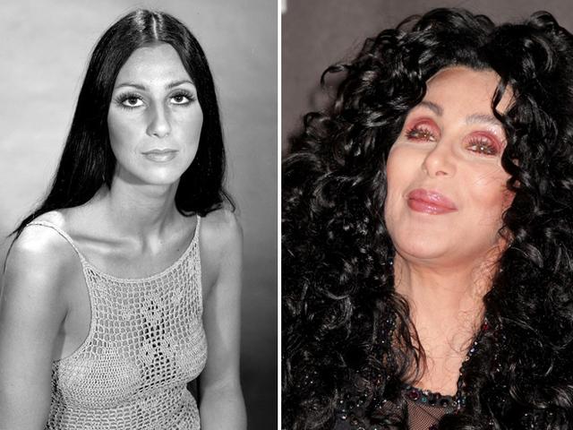 Фото певицы Шер до и после пластики фото