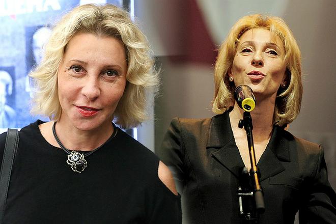 Юлия Рутберг до пластики и после