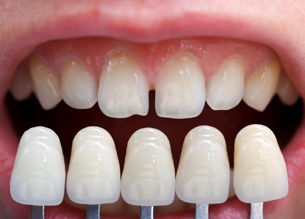 Что такое зубные виниры как их устанавливают на передние зубы плюсы и минусы и срок службы