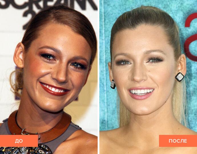 Фото улыбки Блейк Лайвли до и после реставраций