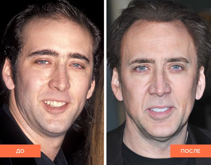 Фото виниров до и после у Николаса Кейджа