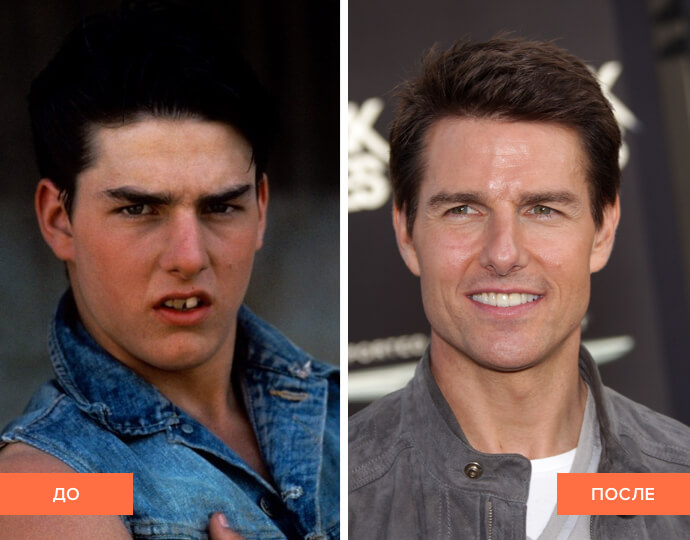 Фото Тома Круза до и после виниринга