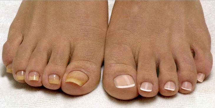Как избавиться от грибка на ногтях ног быстро